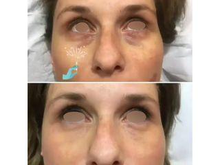 Eliminación de ojeras - Clínicas DH