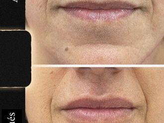 Aumento labios-788999