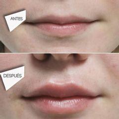 Aumento de labios Clínicas DH
