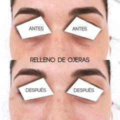 Relleno de ojeras Clínicas DH