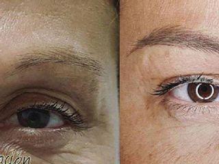 Antes y despues de micropigmentacion