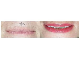 Micropigmentación-663888