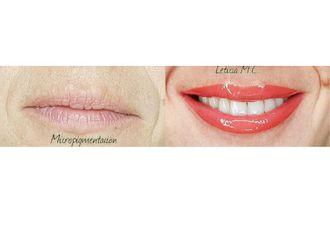 Micropigmentación-663890