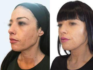 antes y despues  de infiltración con hialurónico.