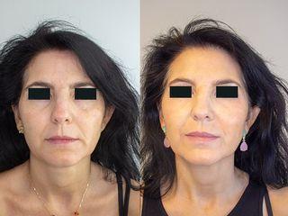 Antes y después Rejuvenece tu rostro en solo unos minutos
