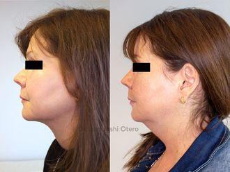Rejuvenecimiento facial-633406