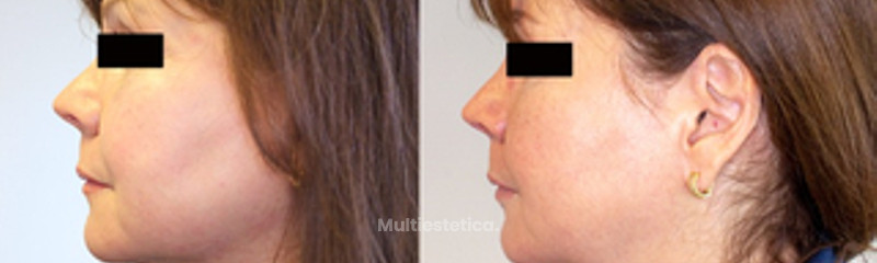 antes y despues de liposucción cervical multiest