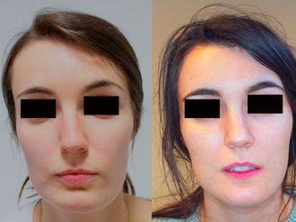 Cirugía maxilofacial - 633465