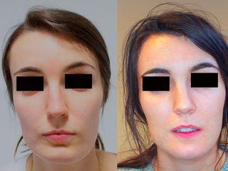 Feminización y simetrización mandibular mediante impresión 3D