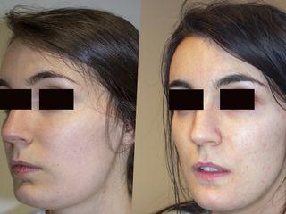 feminización del mentón y simetrización facial