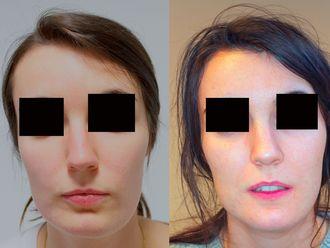 Cirugía maxilofacial-633857