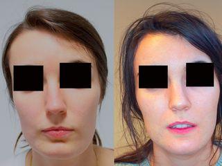 Asimetría facial y feminización mandibular