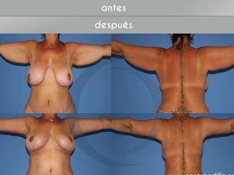 Liposucción - 631133