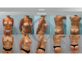 Antes y después - mastopexia liposucción