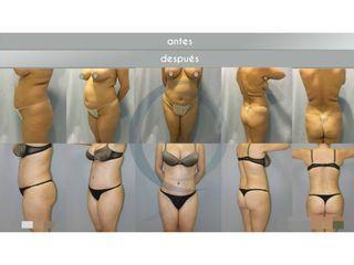 Antes y después abdominoplastia