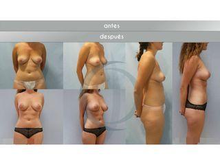 Antes y después Aumento de pecho - lipo