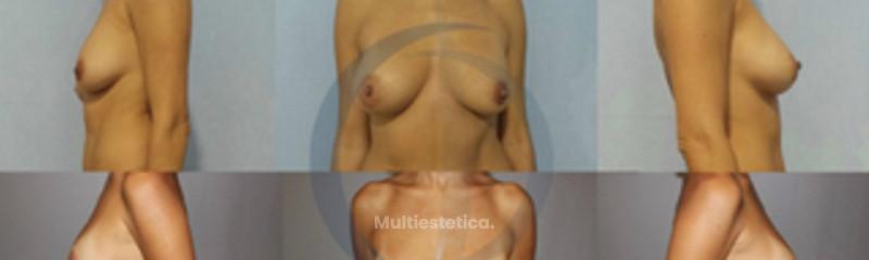 cirugía mamaria secundaria 3