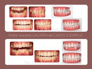 Clínica De Ortodoncia Pilar Martín Balbuena