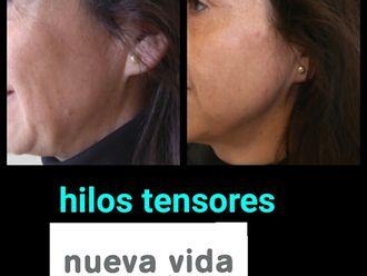 Hilos tensores - 591759