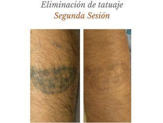 Eliminación de tatuajes - 632344