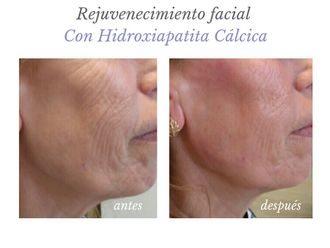 Rellenos faciales - 632346