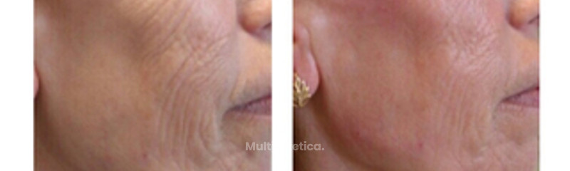FACIAL HIDROXIAPATITA