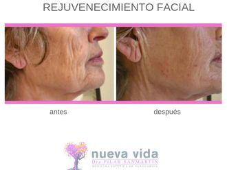 Rejuvenecimiento facial-632347