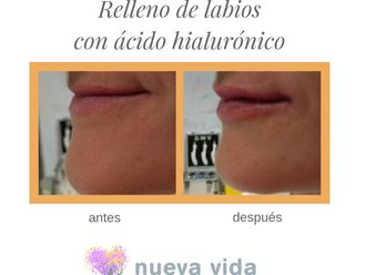 Aumento labios-632351
