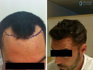 Antes y despues. Alopecia en entradas