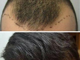 Antes y despues. Pérdida de pelo línea frontal y superior