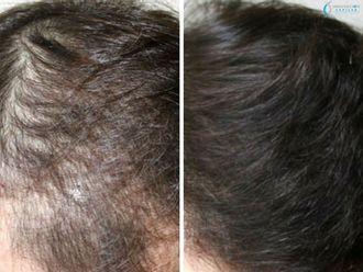 Alopecia-622391