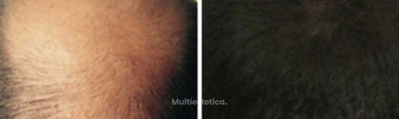 Antes y despues. Alopecia avanzada en parte posterior