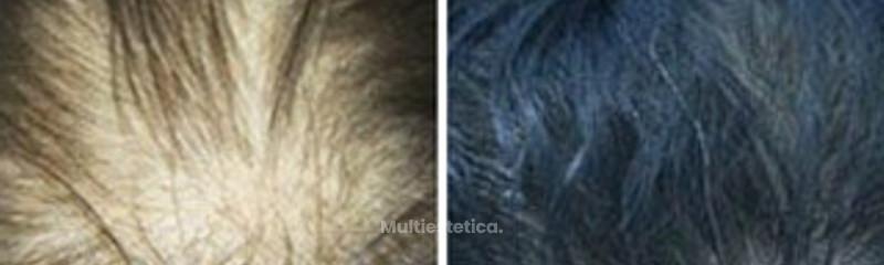 Antes y despues. Alopecia androgenética femenina en zona superior.