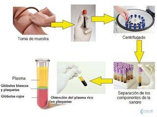 Pasos plasma capilar