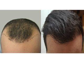 hombre-44-anos-perdida de pelo