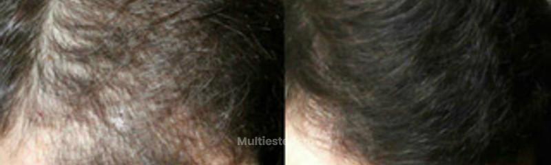 hombre-47-anos-calvicie-en-parte-superior-antes collage