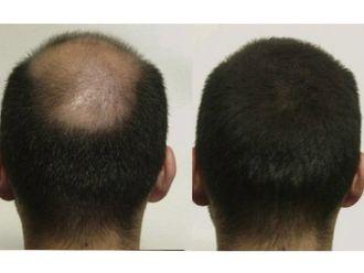 Dermatología-628565