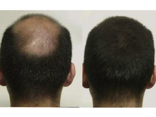 Antes y después trasplantes capilares