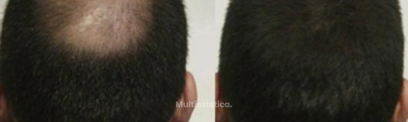 hombre-55-anos-alopecia-avanzada-en-zona-posterior-antes collage