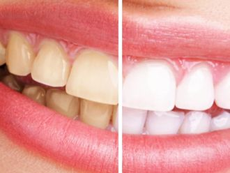 Blanqueamiento dental - 541397