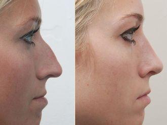Cirugía estética-551371