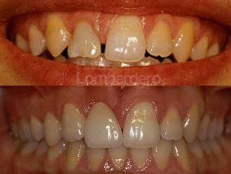Ortodoncia invisible - 412256