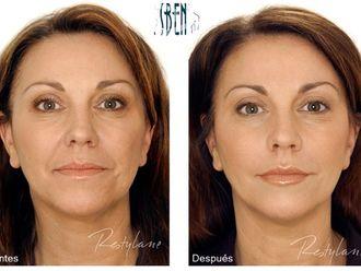 Rejuvenecimiento facial-418847