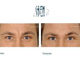 Rejuvenecimiento facial-418848