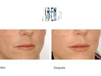 Rejuvenecimiento facial-418851