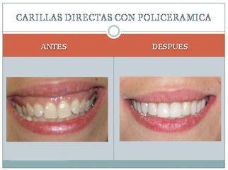 Antes y después Carillas de policerámica.