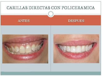 Carillas dentales-225385