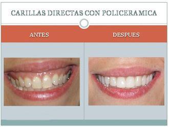 Carillas dentales - 225385