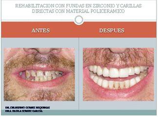 Antes y después Estética dental.