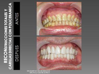 Carillas dentales - 226896
